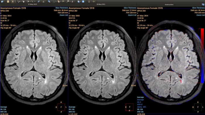 longitudinal brain imaging por RM