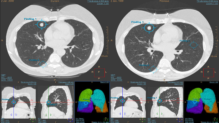 CT Lung Nodule Assessment
